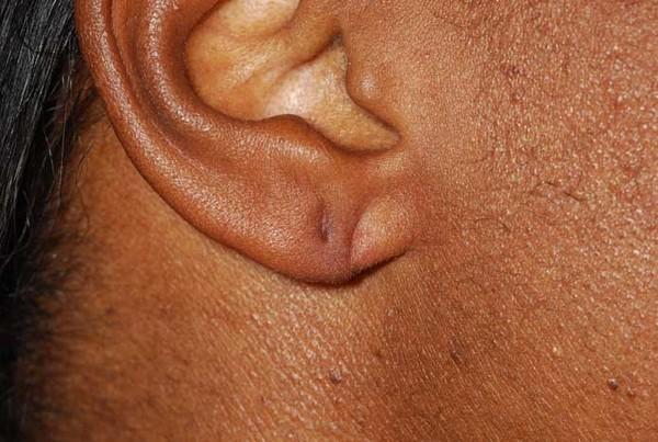 Những người có dái tai nhỏ thường ít nhận được thiện cảm từ mọi người