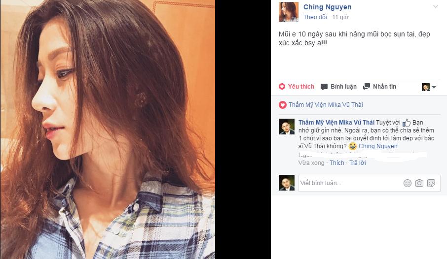 Lời chia sẻ và hình ảnh của Ching Nguyen sau khi phẫu thuật nâng mũi được 10 ngày