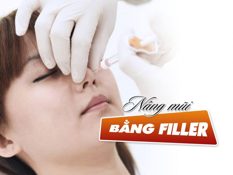 Nâng mũi bằng Filler giải pháp sửa mũi không cần dao kéo.