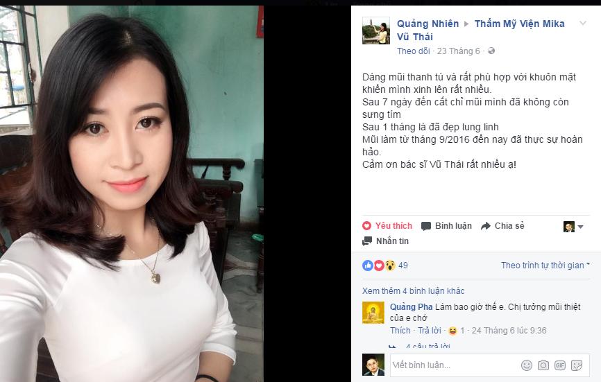 Lời chia sẻ của Quảng Nhiên sau khi nâng mũi được 1 tháng